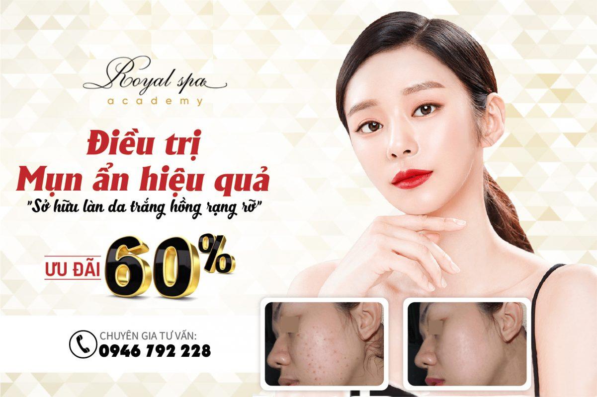 Điều trị mụn ẩn dưới da tại Nam Định