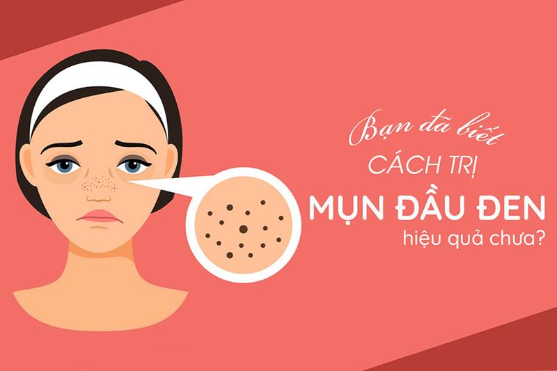 Cách điều trị mụn đầu đen tại Nam Định