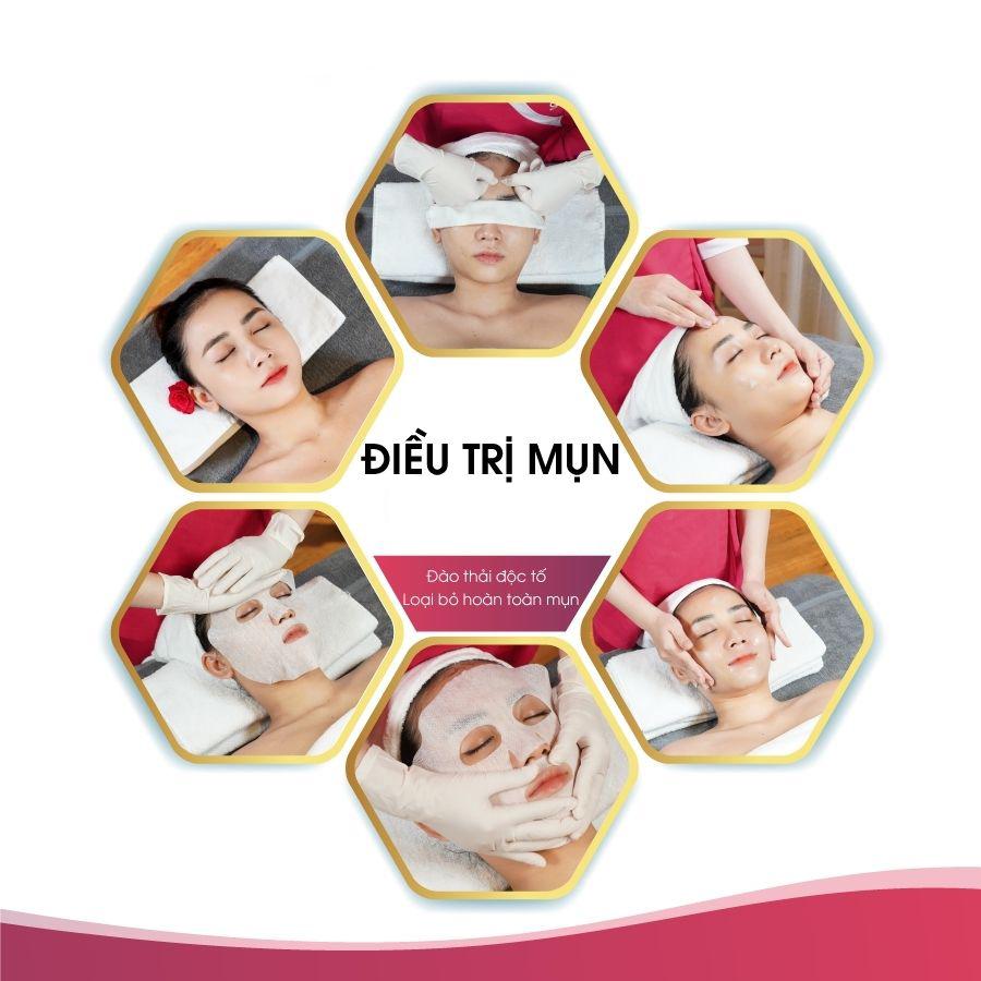 Điều trị mụn đầu đen tại Nam Định