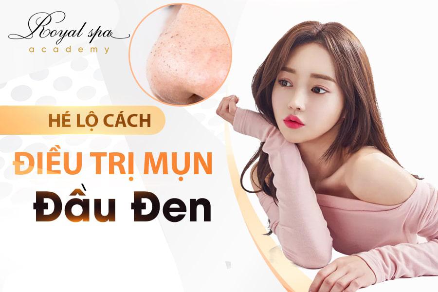 Phương pháp điều trị mụn đầu đen tại Nam Định
