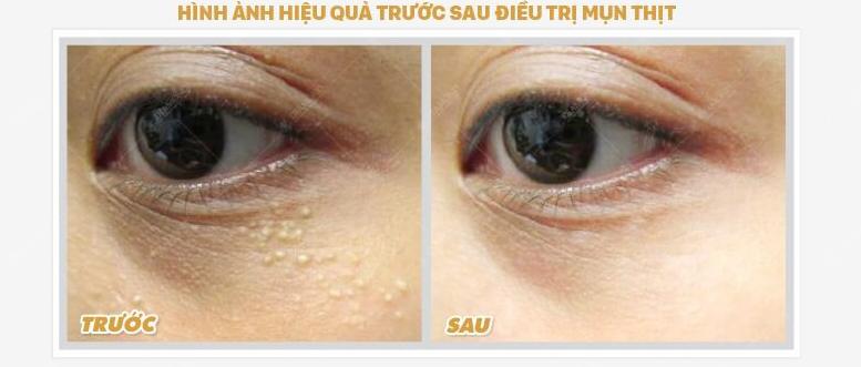 Điều trị mụn thịt tại Nam Định