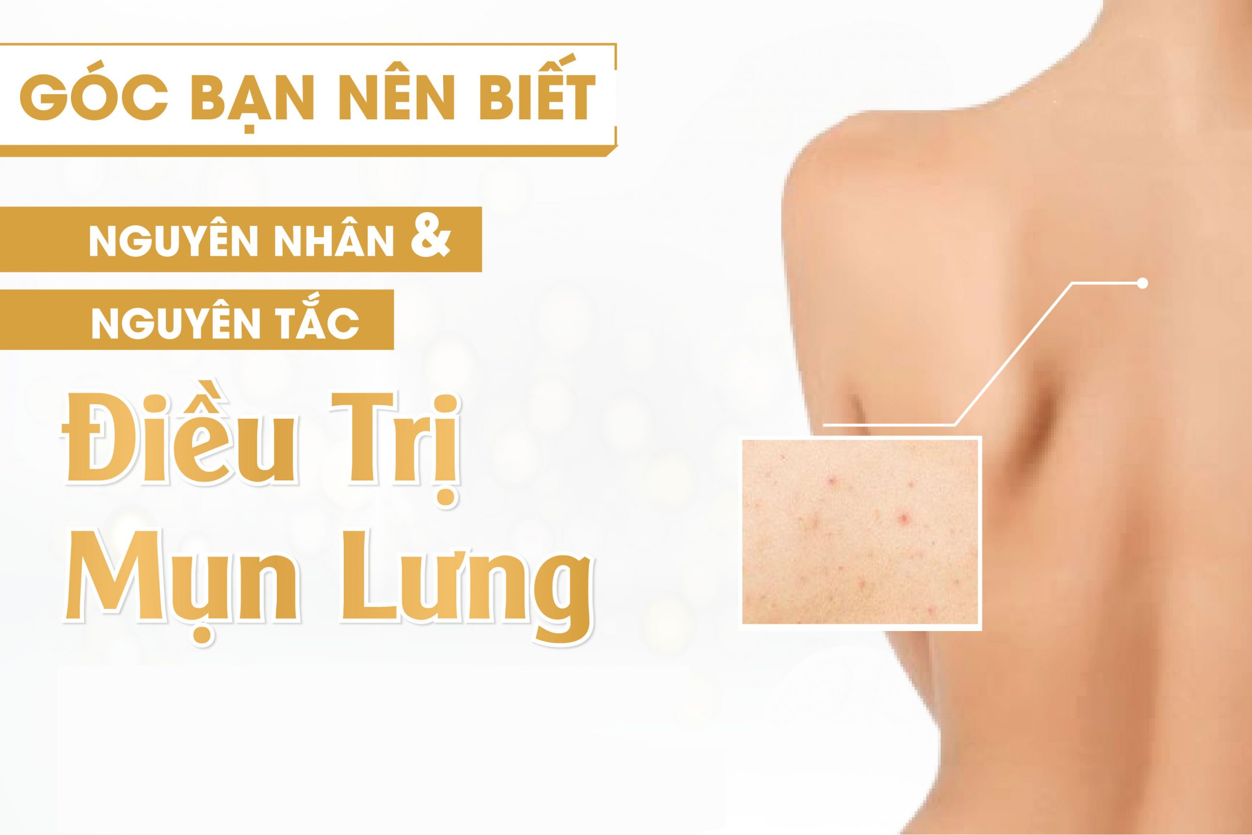 Điều trị mụn lưng tại Nam Định