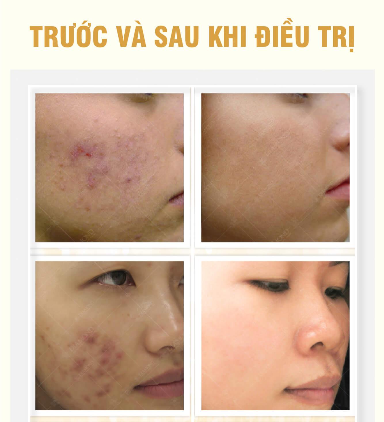 Hình ảnh trước và sau khi điều trị mụn tại Nam Định