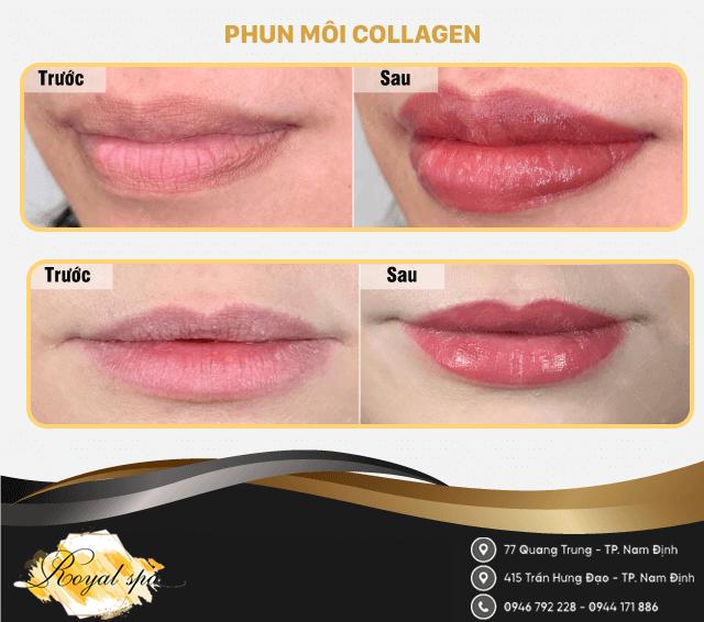 Phun Môi Collagen tại Nam Định
